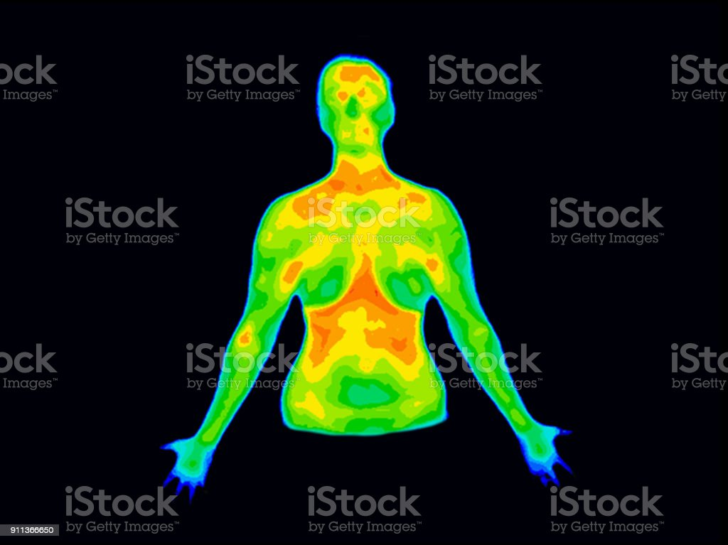 Thermography Front Upper body b stock photo