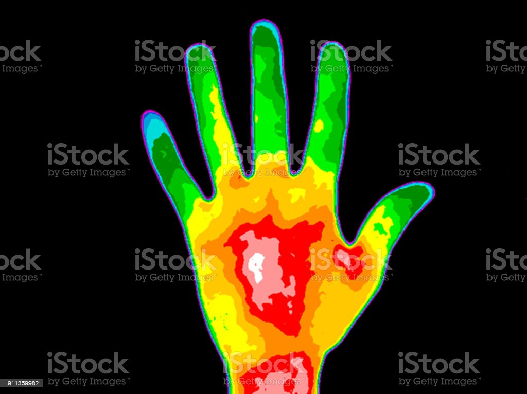 Thermography Hand Palm Thermographic image of the palm of a persons hand with the photo showing different temperature in a range of colors from blue showing cold to red showing hot which can indicate joint inflammation.  Red heat in the palm can indicate diabetes. Analyzing Stock Photo