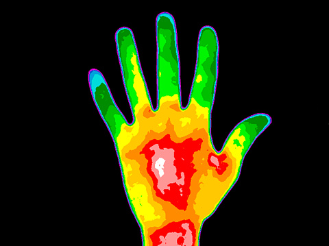 Thermography Hand Palm Stock Photo - Download Image Now