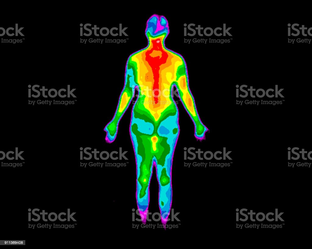 Thermography Whole Body Back 2 stock photo