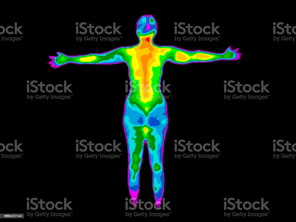 Thermography Whole Body Back stock photo