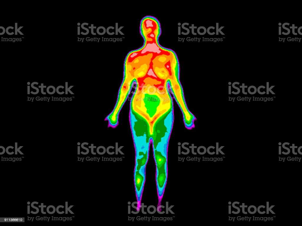 Thermography Whole Body Front 2b stock photo