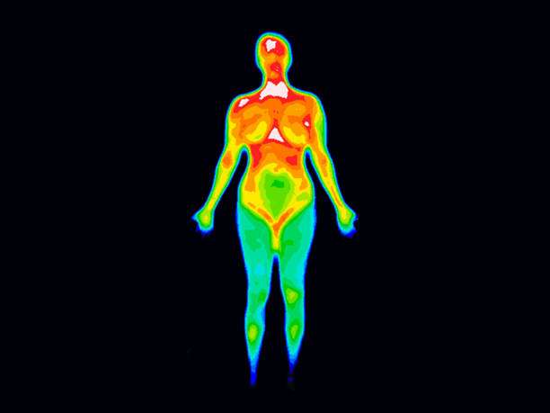 Thermography Whole Body Front stock photo