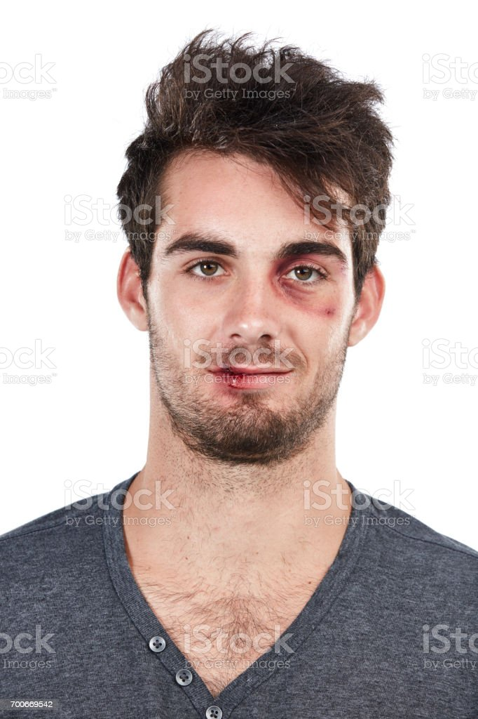 These bruises will heal stock photo
