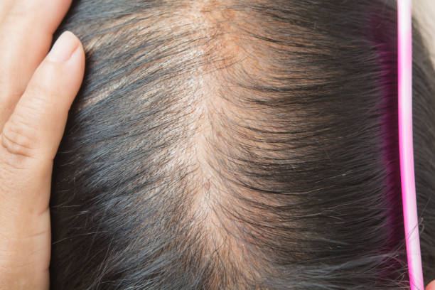 Thin  hair and scalp  and broken hair Thin  hair and scalp  and broken hair human scalp stock pictures, royalty-free photos & images