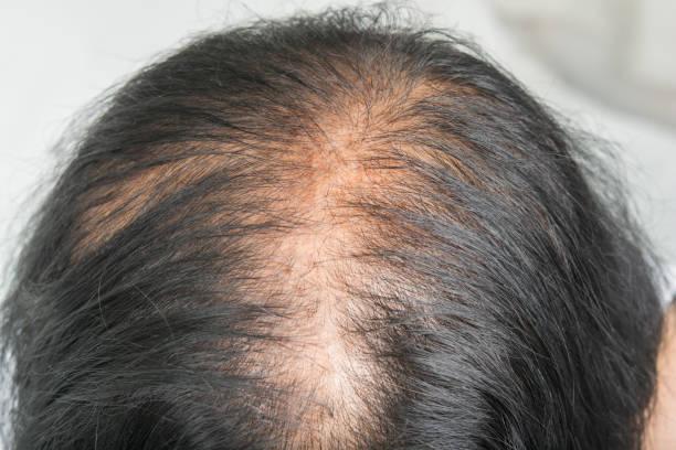 Thin  hair and scalp  and broken hair stock photo