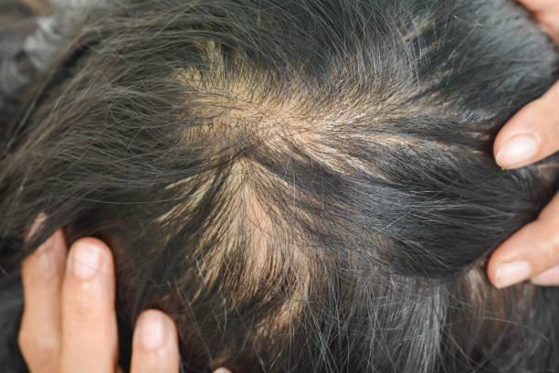 thin hair in women stock photo