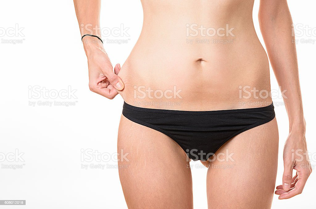 Thin underweight young woman pinching her flesh stock photo