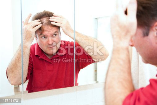 1130731761istockphoto Thinning Hair in Middle Age 177411701