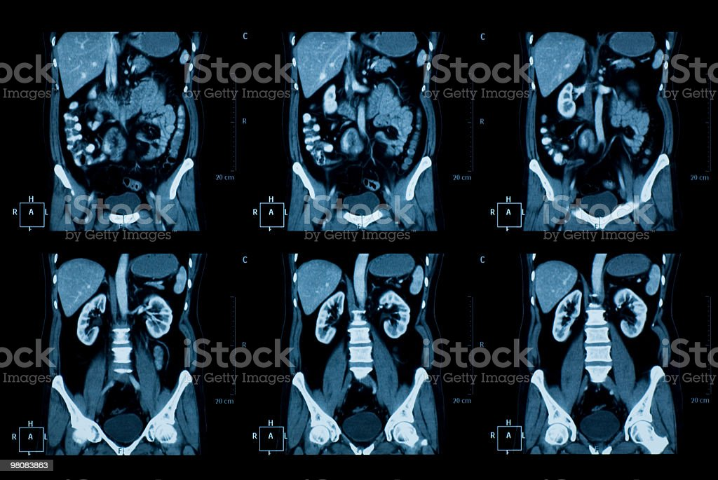 thoracoabdominal CT royalty-free stock photo