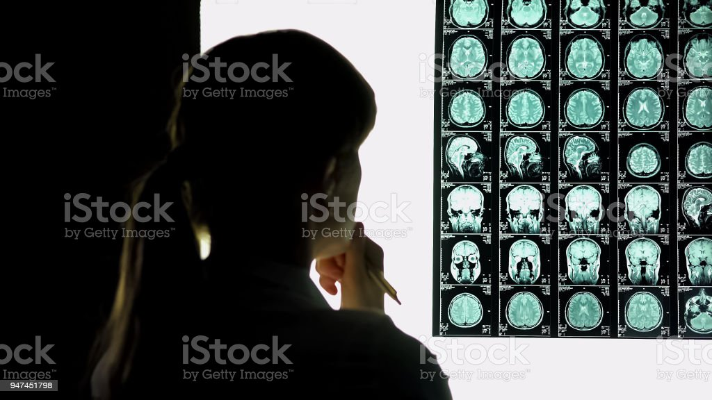 Thoughtful female doctor analyzing brain scan, medical research,...