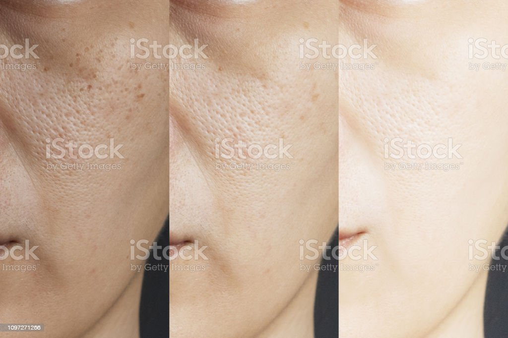 three pictures compared effect Before and After treatment. skin with problems of freckles , pore , dull skin and wrinkles before and after treatment to solve skin problem for better skin result stock photo