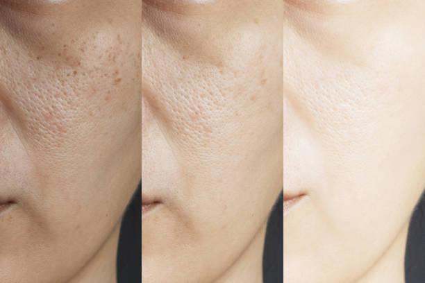 três fotos compararam o efeito antes e depois do tratamento. pele com problemas de sardas, poros, pele maçante e rugas antes e depois do tratamento para resolver o problema da pele para melhor resultado da pele - antecipação - fotografias e filmes do acervo