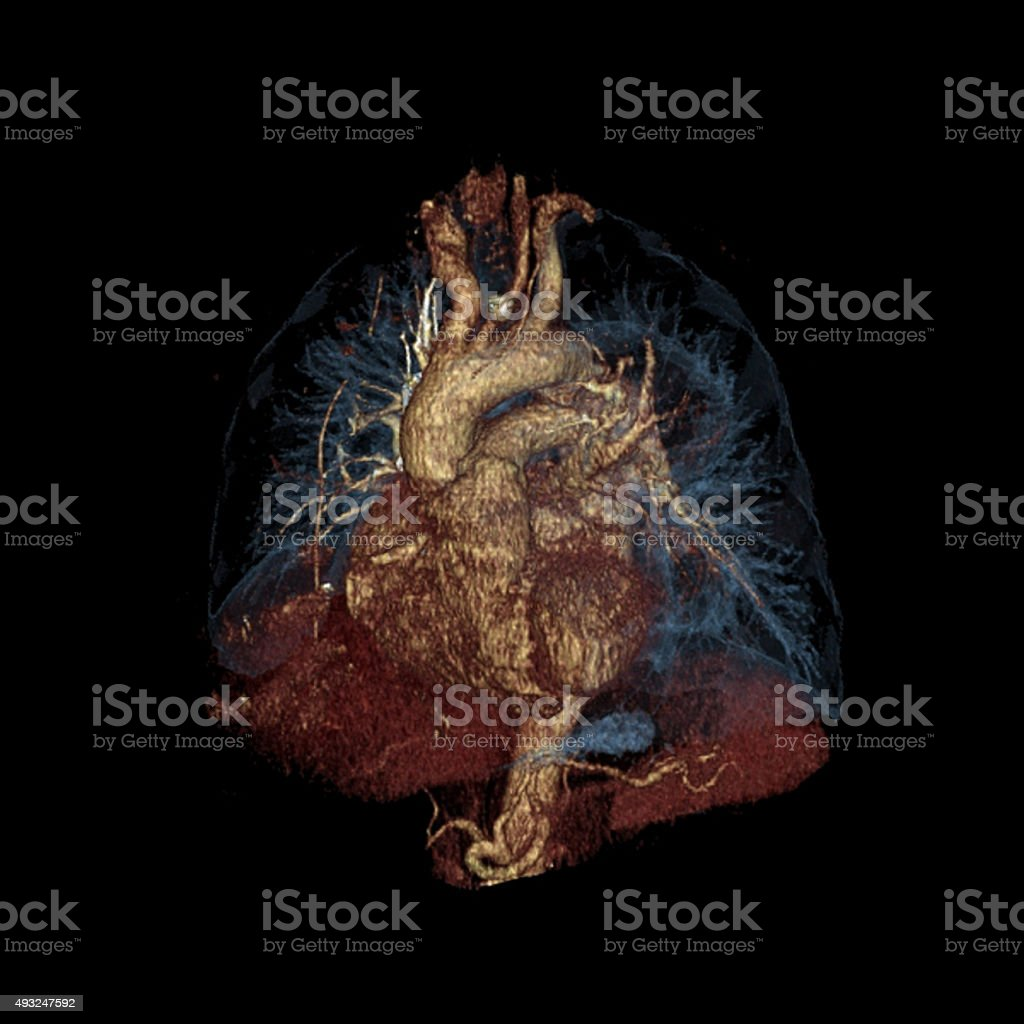 Three-dimensional color computed tomography image of the heart and lungs stock photo