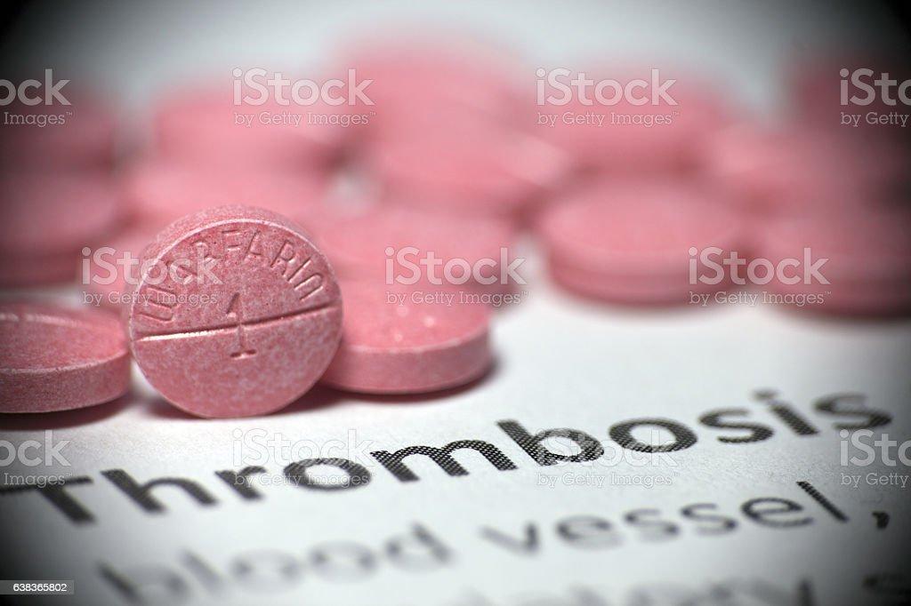 Thrombosis treatment stock photo