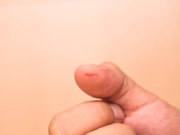 thumb cut wound - open wounds stock photos and pictures