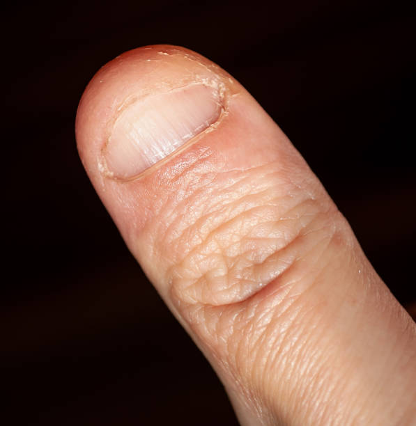Thumb, finger, nail biting, human, Caucasian stock photo