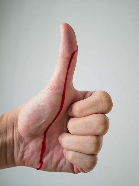 thumbs up with blood - knife wound stock photos and pictures