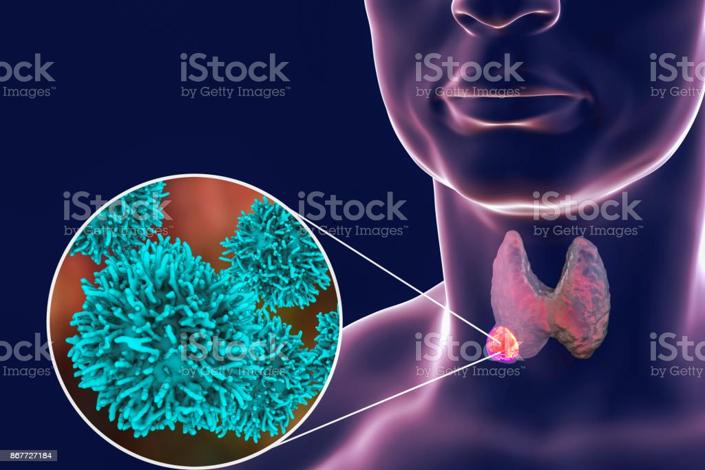 Thyroid cancer illustration stock photo