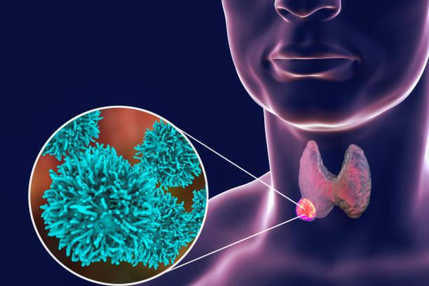 ilustração de câncer de tireoide - cancer da tireoide - fotografias e filmes do acervo