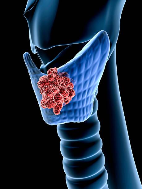 câncer da tireóide - cancer da tireoide - fotografias e filmes do acervo