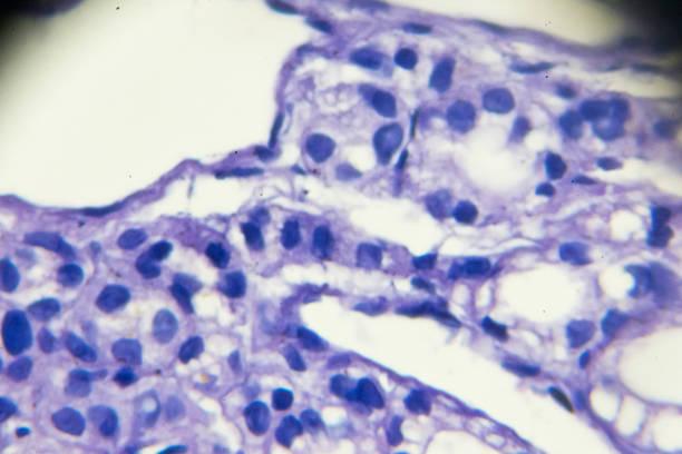 biópsia de carcinoma de tireoide em microscopia - cancer da tireoide - fotografias e filmes do acervo