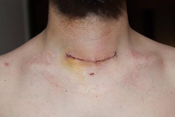 glândula tireóide scar - cancer da tireoide - fotografias e filmes do acervo