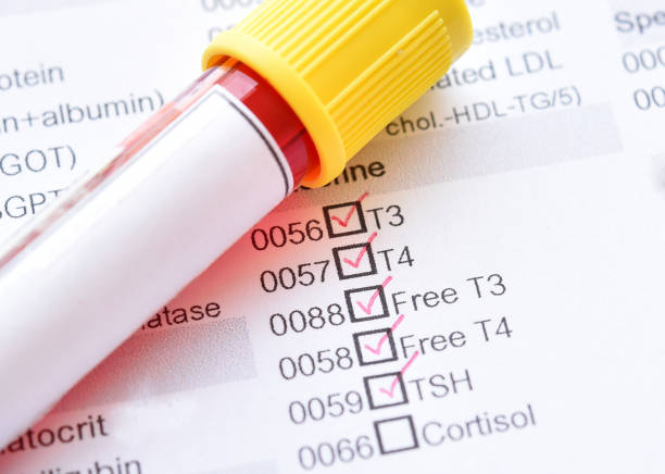 Thyroid hormone test stock photo