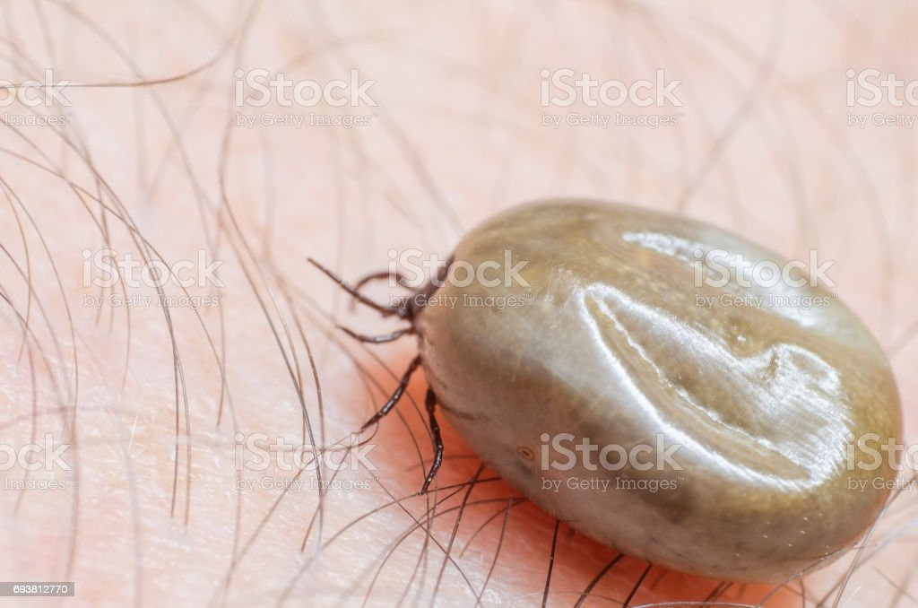 Tick filled with blood sitting on human skin stock photo