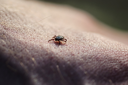 Tick insect parasite crawling on human skin. Hard tick (Ixodes)