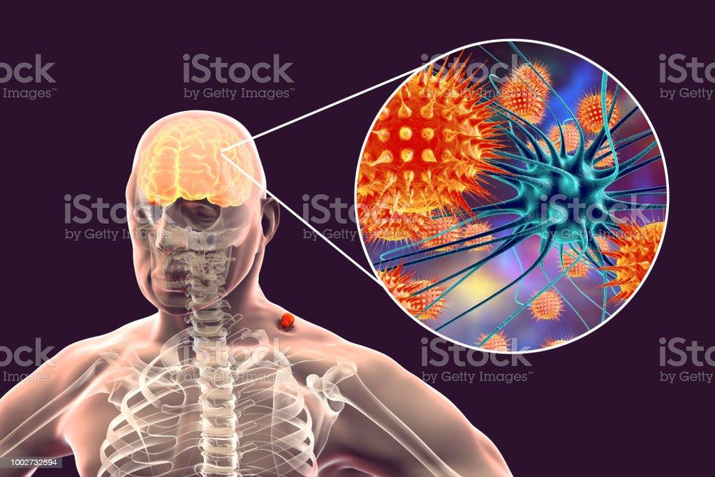 Tickborne Encephalitis Concept Stock Photo & More Pictures of ...