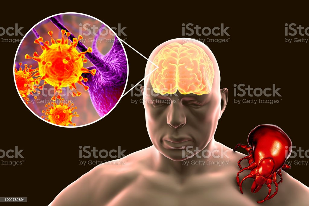 Tick-borne encephalitis concept stock photo