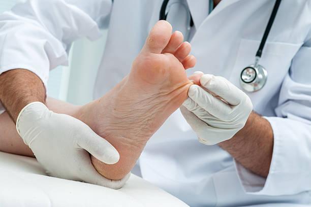 Tinia pedis or Athlete's foot stock photo