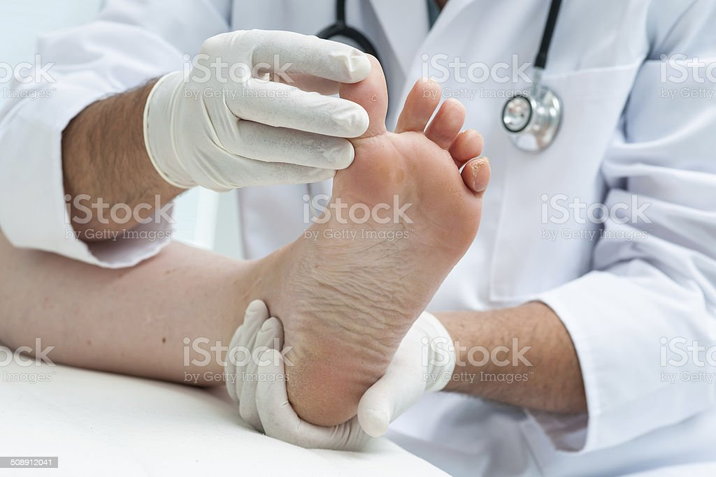 Tinia pedis or Athlete's foot Doctor dermatologist examines the foot on the presence of athlete''s foot Adult Stock Photo