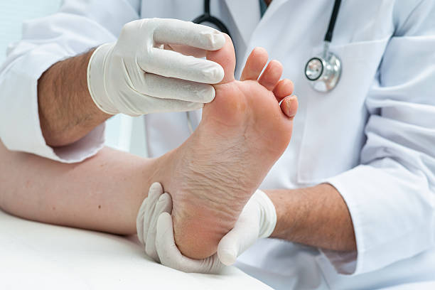 tinia pedis or athlete's foot - dermatologist stock pictures, royalty-free photos & images