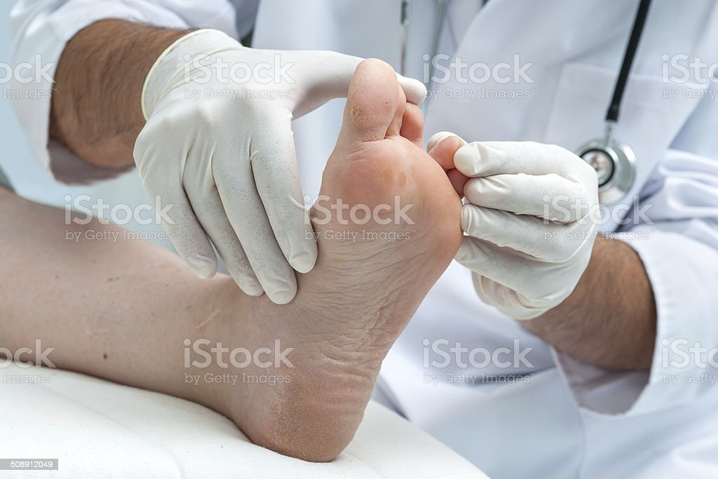 Tinia pedis or Athlete's foot stock photo
