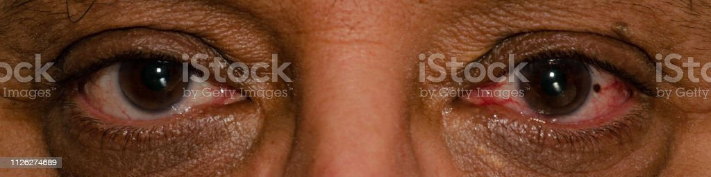 Shot of tired brown eyes expression of a caucasina mature man