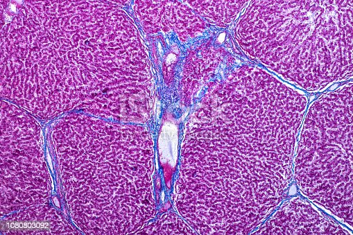 istock Tissue of Liver under the microscope for education in Laboratory physiology. 1080803092