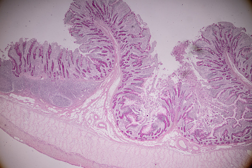 istock Tissue of small intestine or small bowel under the microscopic in Lab. 1084918758