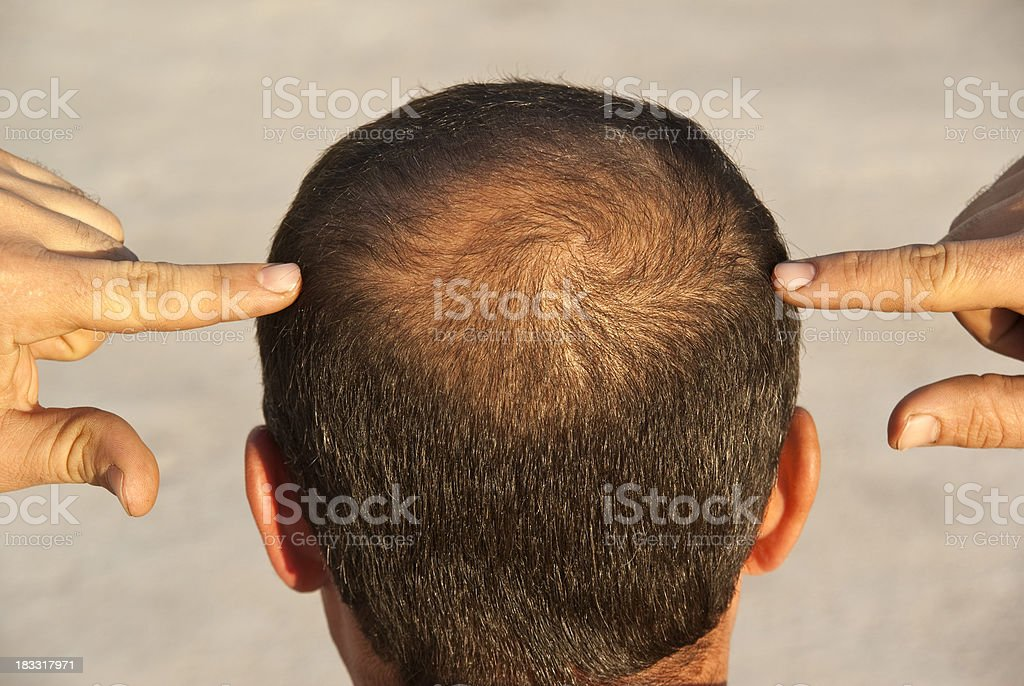 to become bald stock photo
