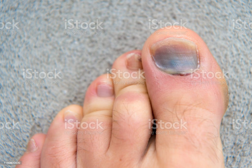 moreton uña dedo gordo pie