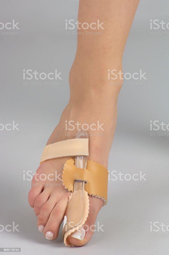 Toe splint,hallux valgus splint stock photo