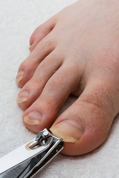 Royalty Free Long Toenails Pictures, Images And Stock