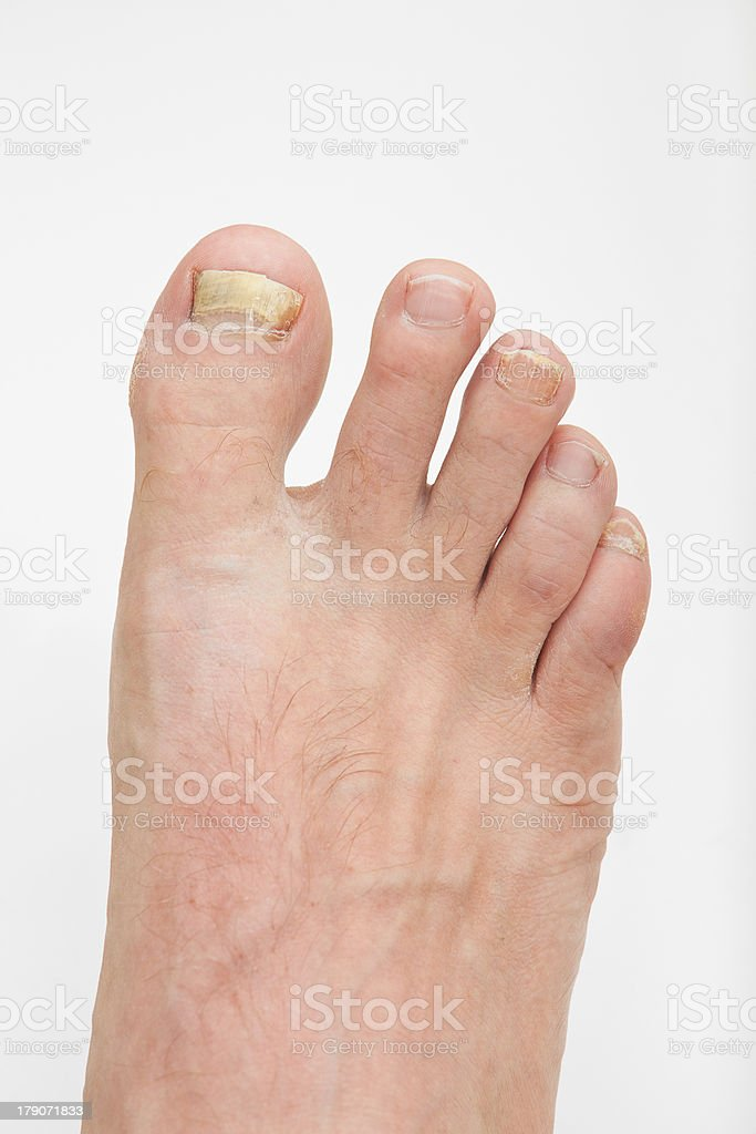 Toenail fungus stock photo
