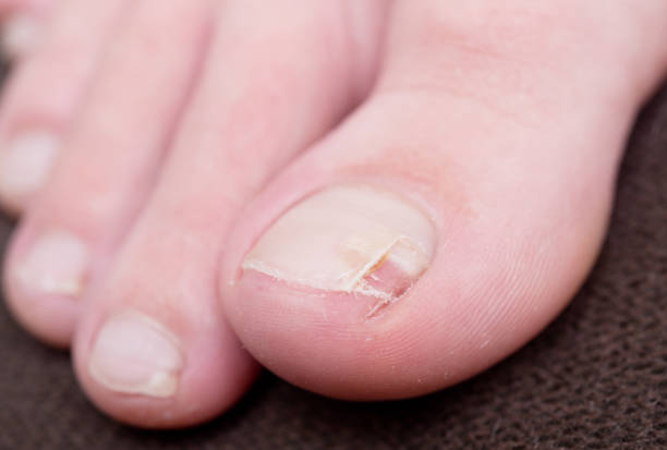 Treatment for Cracked Toenail and Toenail Fungus – Nail Fungus products