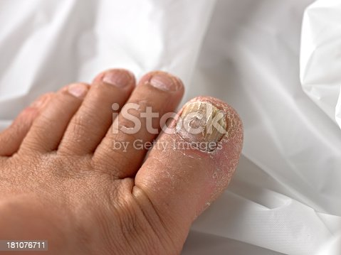Toenail infected with Fungus.