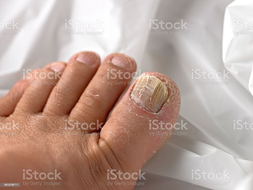 Toenail with Fungus stock photo