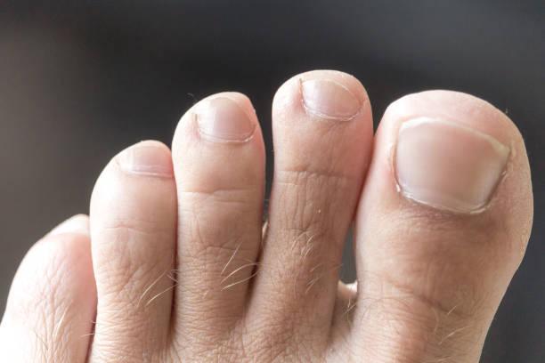 Die Zehen eines Fußes schüchtern – Foto