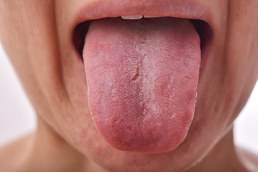 Tongue problem disease, Fissured white tongue, Unhealthy oral care hygiene.