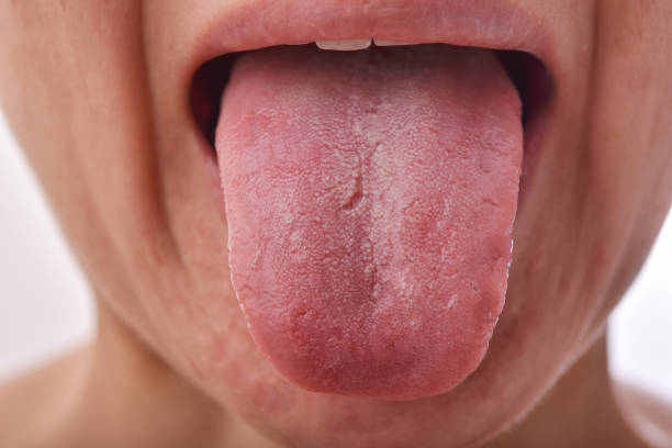 Zungenproblem krankheit, Fissured white tongue, Unhealthy oral care hygiene. – Foto